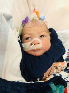 new born infant baby with breathing tubes and other medical devices